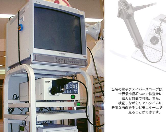 超細径電子ファイバースコープと超小型マイクロプロセッサー画像ファイリングシステム